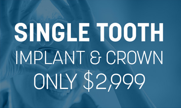 single tooth implant and crown special offer tx